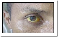 Ictericia (ojos amarillentos)