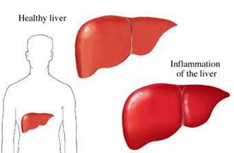 si1254 Dibujo del hígado