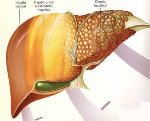 esteatosis-hepatica