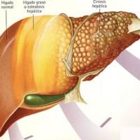 La gravedad del receptor de un hígado limita la supervivencia del órgano, premian un estudio