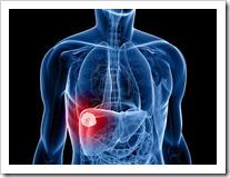 cancer de higado hepatocarcinoma