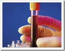 muestra-de-sangre