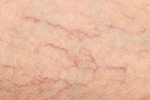 En la hiv por fotos piel manchas