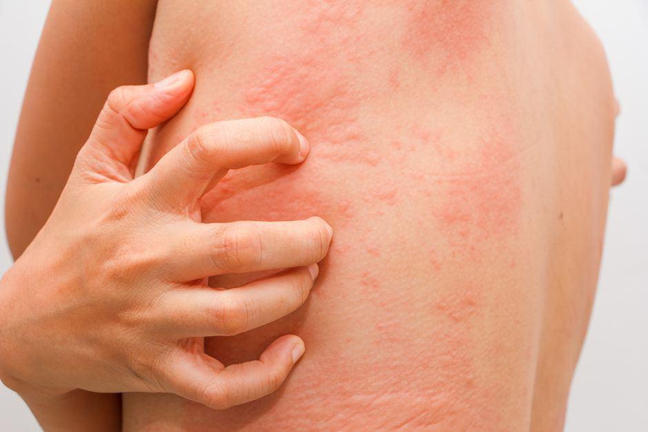 Sintomas cirrosis en el higado