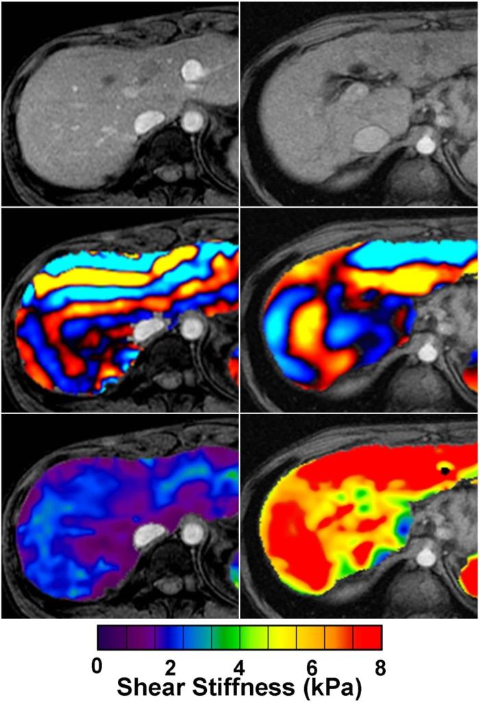 imagen de grados de la fibrosis en el hígado