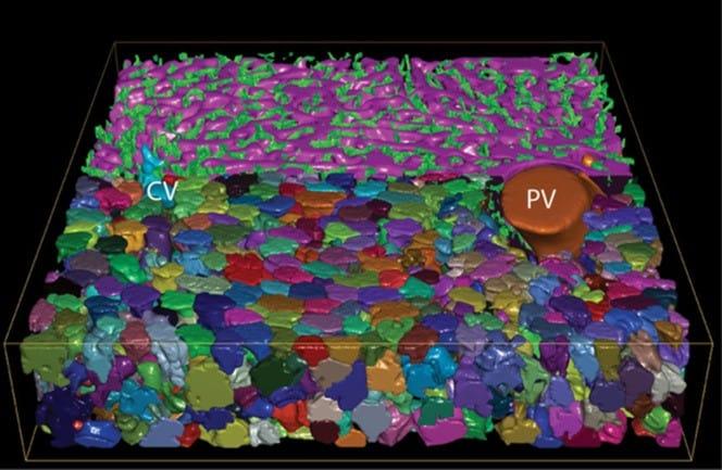 Reconstrucción 3D de redes sinusoidales (magenta) y biliares canaliculares (verdes) que conectan CV y PV, así como contacto con hepatocitos
