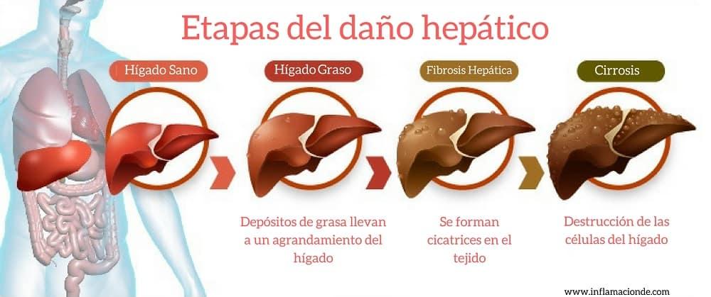 etapas del hígado graso