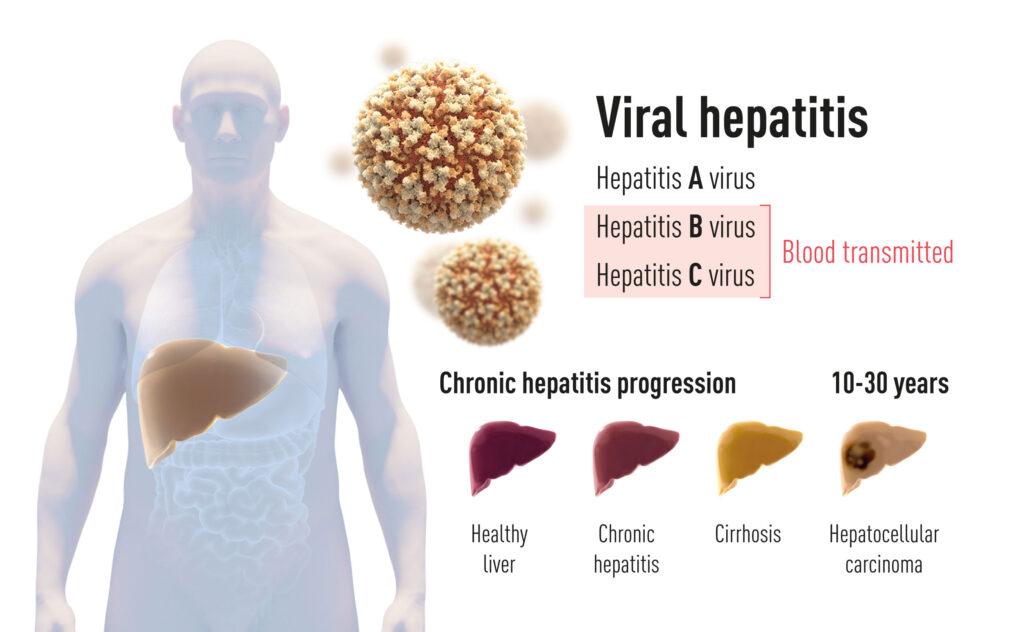 ilustración sobre hepatitis A hepatitis B y Hepatitis C . Etapas de afectación en el hígado de la infección